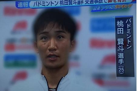 桃田賢斗の事故原因は?怪我の状態やオリンピック試合はどうなる?【マレーシア交通事故】