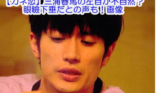 【カネ恋】三浦春馬の左目が不自然?眼瞼下垂だとの声も!画像