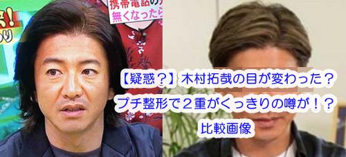 【日産CM】木村拓哉の目が変わった?プチ整形疑惑で2重がくっきり!比較画像